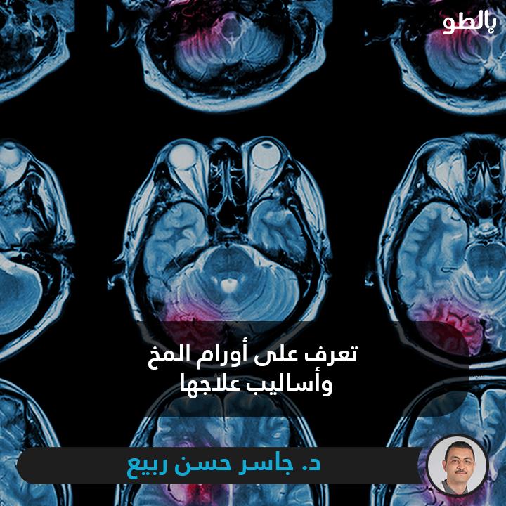 تعرف علي أنواع الاورام التي تصيب المخ وأهم أسبابها وأحدث طرق العلاج الجراحي من د جاسر حسن ربيع مدرس واستشاري جراحات المخ والأعصاب Movie Posters Poster Movies