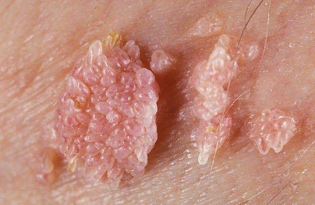 wart herpes virus
