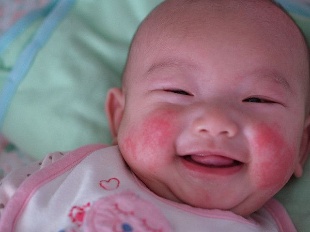 Why Do Babies Get Eczema? No one really knows what causes ...