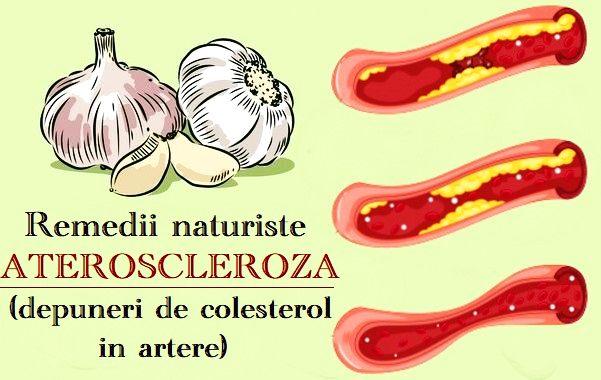 tratament cu preparate în varicoză