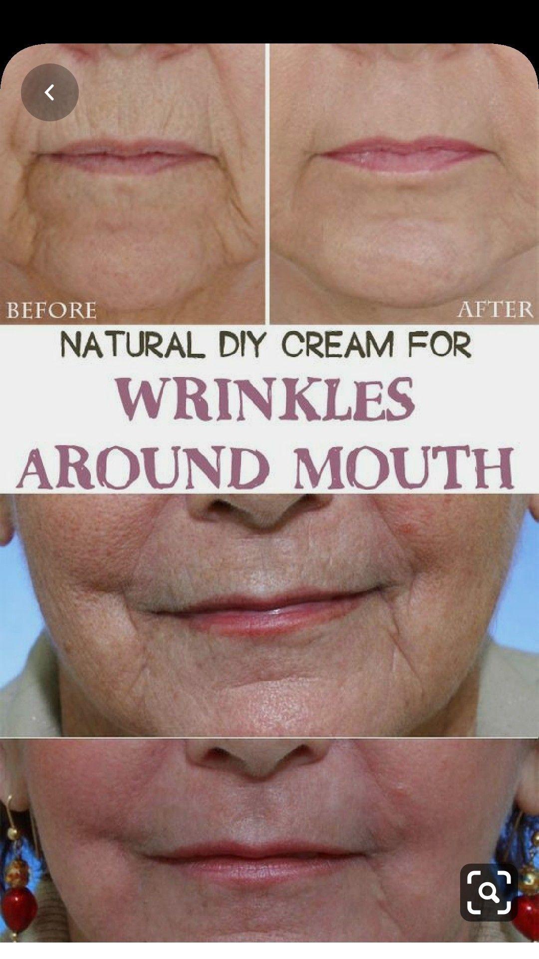 Natürliche Diy Creme Gegen Mundfalten Gesicht Pflege Jugendliche Akne Haut Straffend