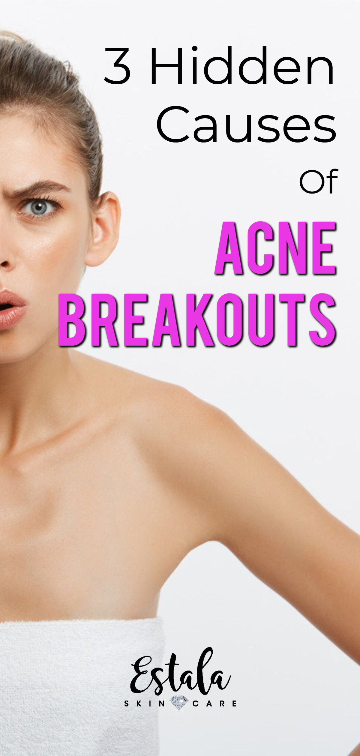3 Hidden Causes For Your Acne Breakouts With Images Acne