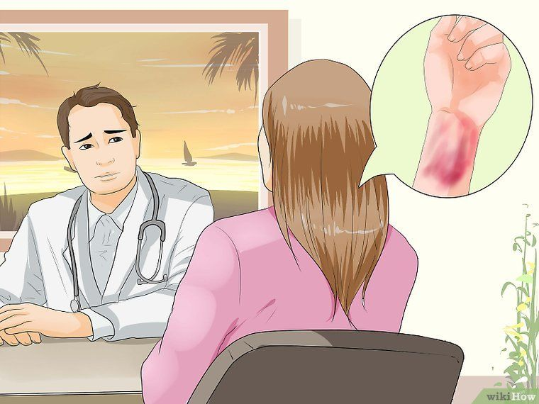 How To Get Rid Of A Bruise Overnight Wikihow