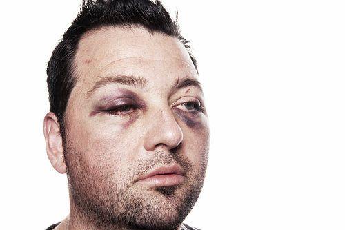 como quitar hematomas de los ojos