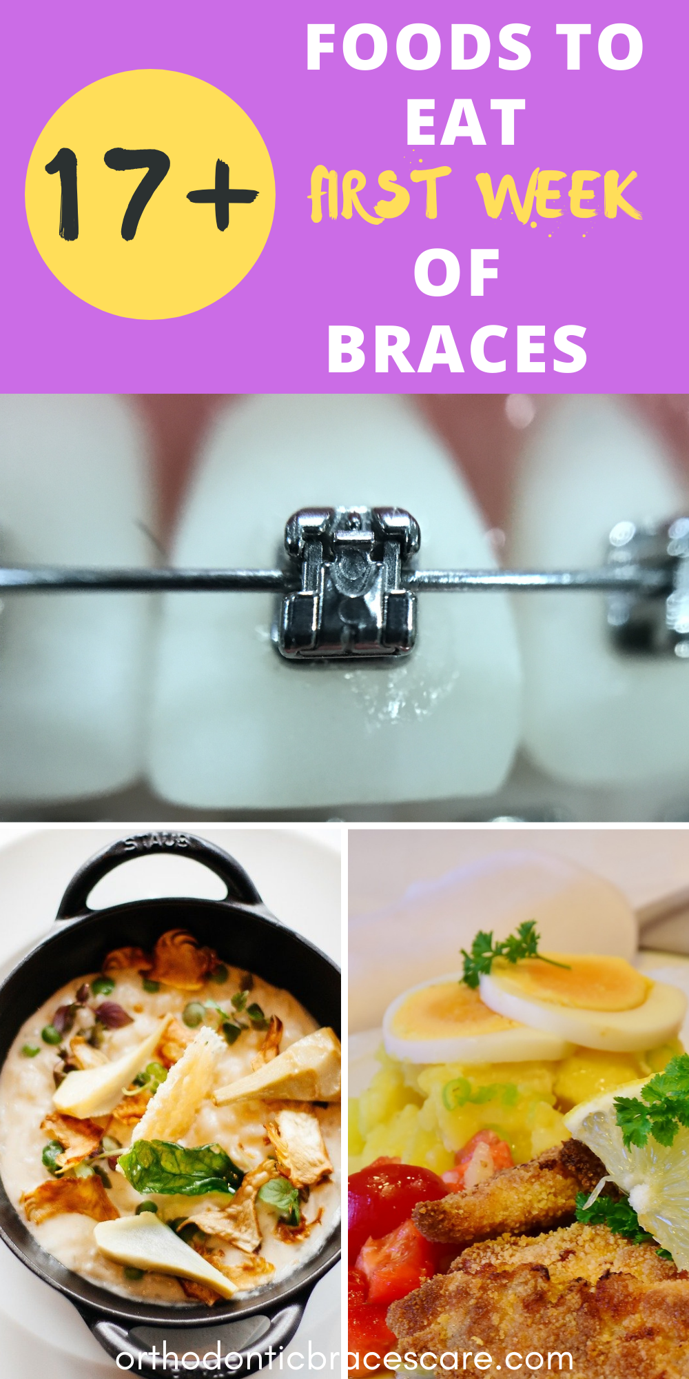 17 Foods To Eat With Braces The First Week Braces Food Eat Foods To Eat