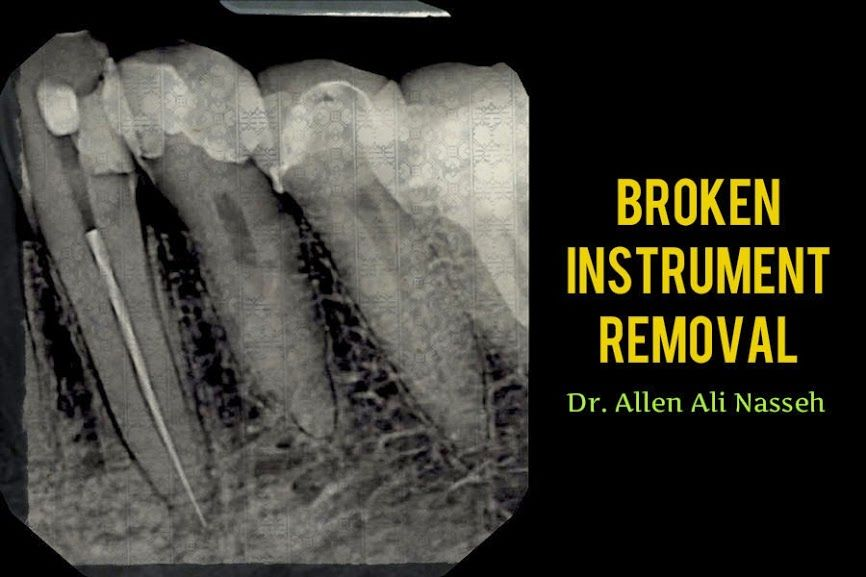 Clinical Case: Broken Instrument Removal - Dr. Allen Ali Nasseh ...