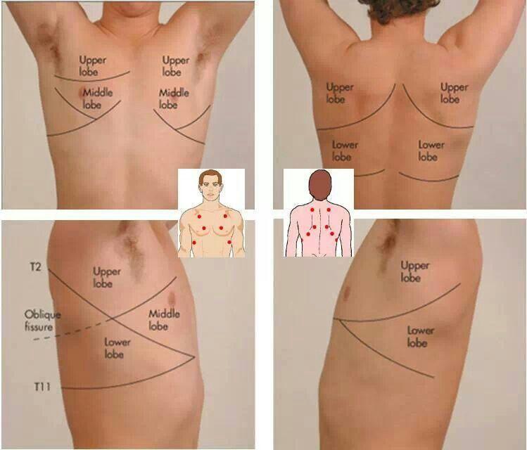 1f203971e9b0ae12592378871c031c44 auscultation points emt paramedic airway pinterest lung sounds