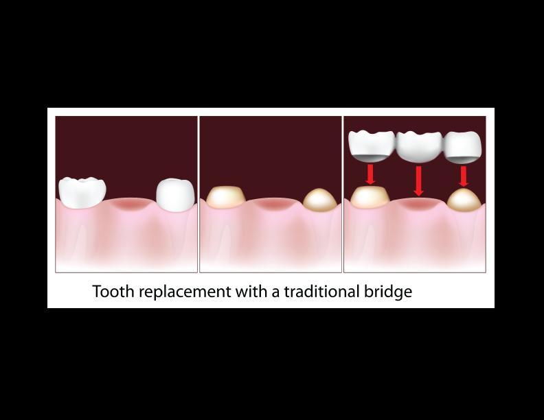 Emergency Dentist Arlington Arlington Advanced Dental Care
