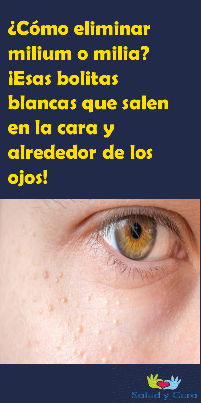 Cómo Eliminar Milium O Milia Esas Bolitas Blancas Que Salen En La Cara Y Alrededor De Los Ojos Elimi Natural Beauty Tips Beauty Procedures Facial Wrinkles