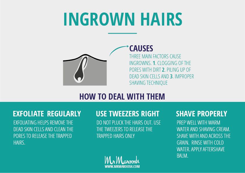 How To Get An Ingrown Hair Out Without Tweezers