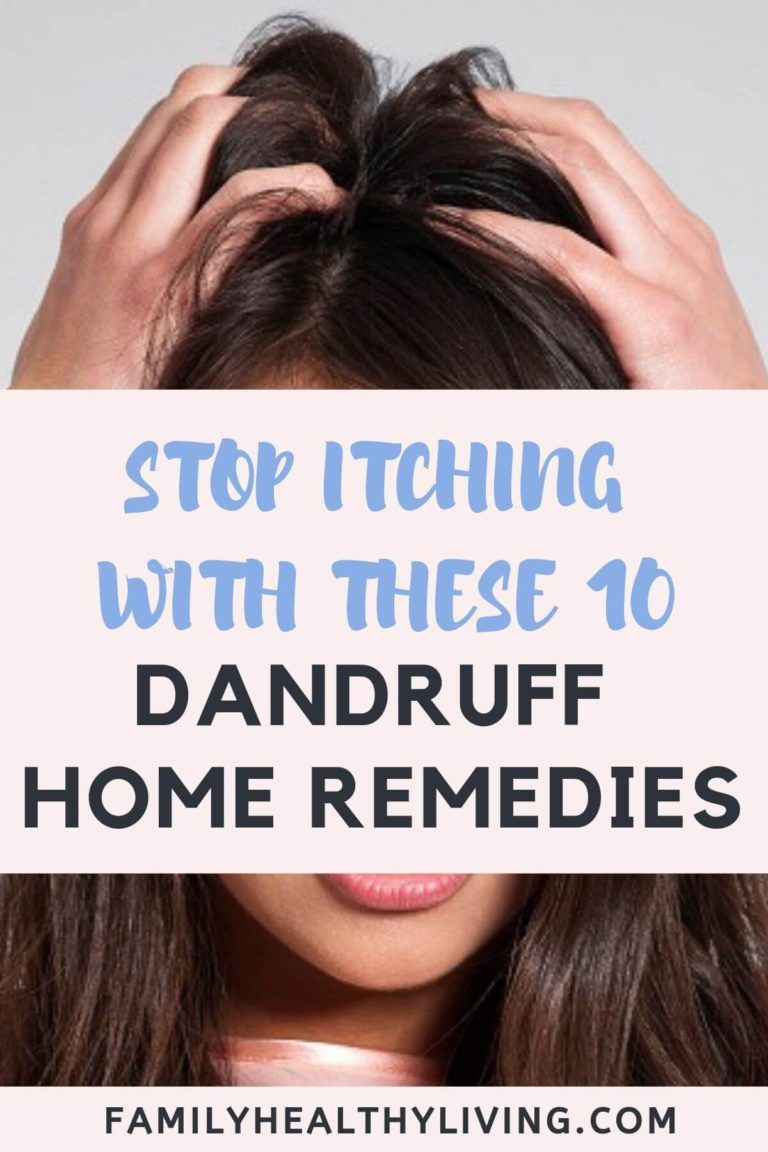 10 Dandruff Home Remedies is part of Dandruff remedy, Natural dandruff remedy, Home remedies for dandruff, Dandruff remedy coconut oil, Hair dandruff, Oils for dandruff - Here you will find Top 10 Dandruff Home Remedies  No need to use harsh products on your hair, when there are Natural Home Remedies for Dandruff!