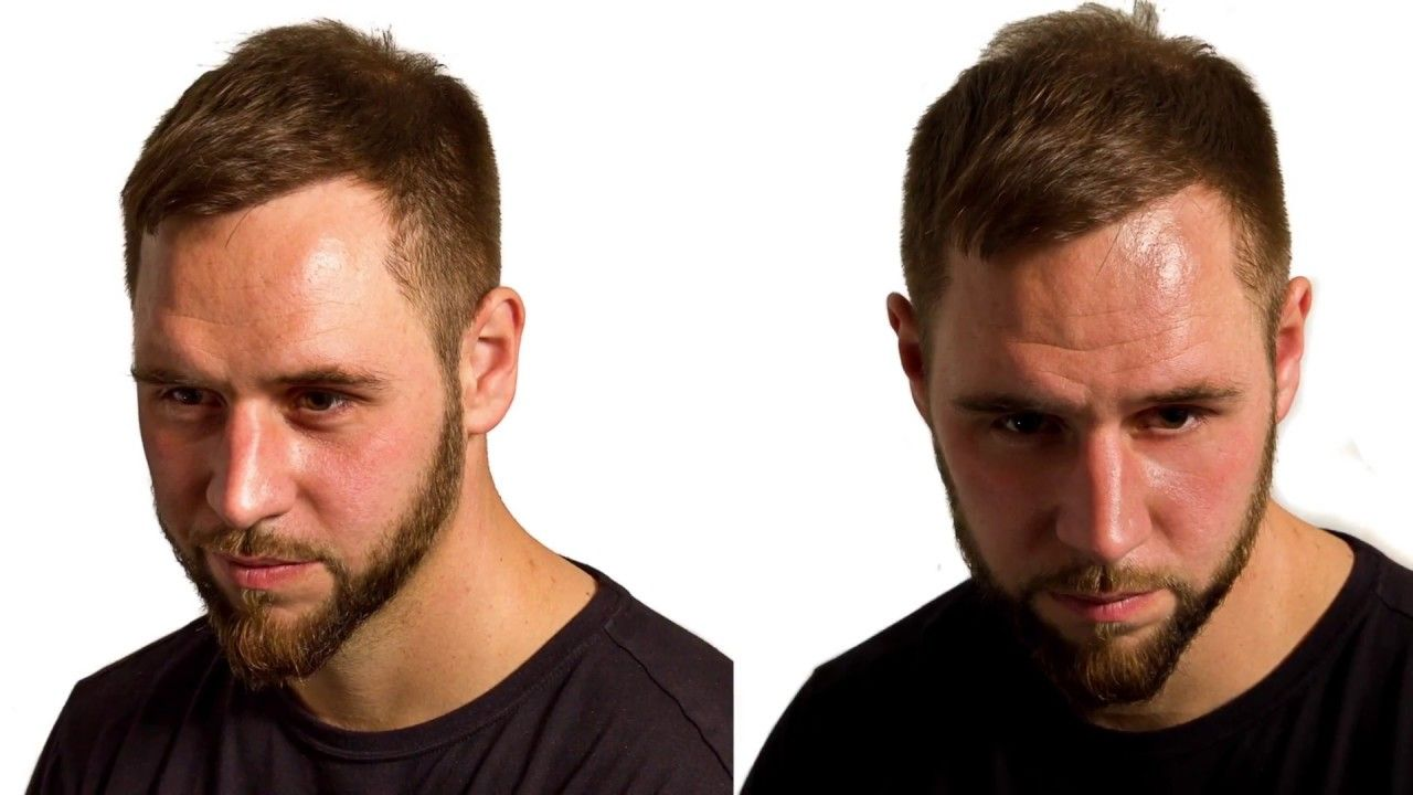 Hairline Design In A Caucasian Male At Darling Buds Chandigarh India S Hair Transplant In India Hair Transplant Best Hair Transplant