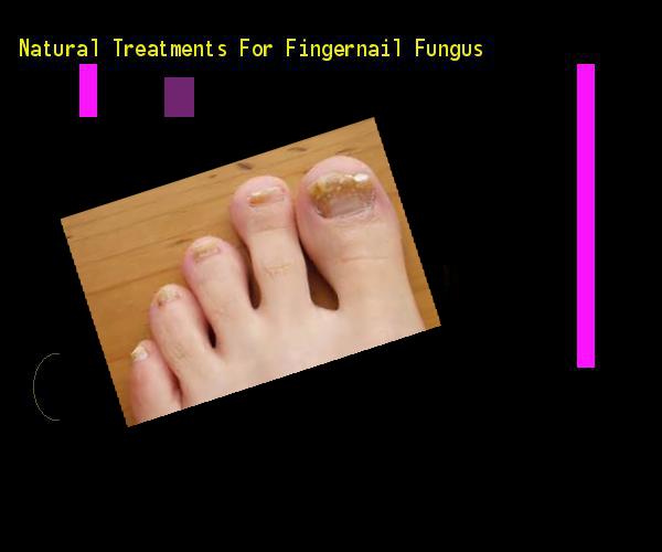 Natural treatments for fingernail fungus - Nail Fungus Remedy. You ...