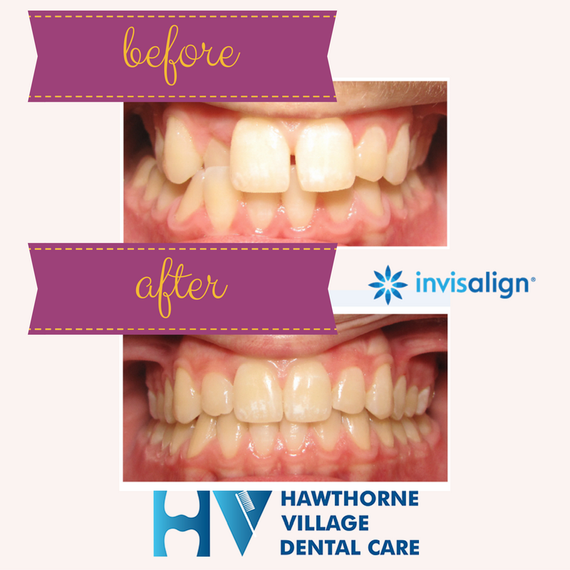 """Is Invisalign as effective as """"regular"""" braces? Pictures ..."""