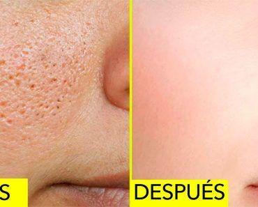 10 Remedios Caseros Para Reducir Los Poros Abiertos En Su Piel Skin Clogged Pores Flaking Skin