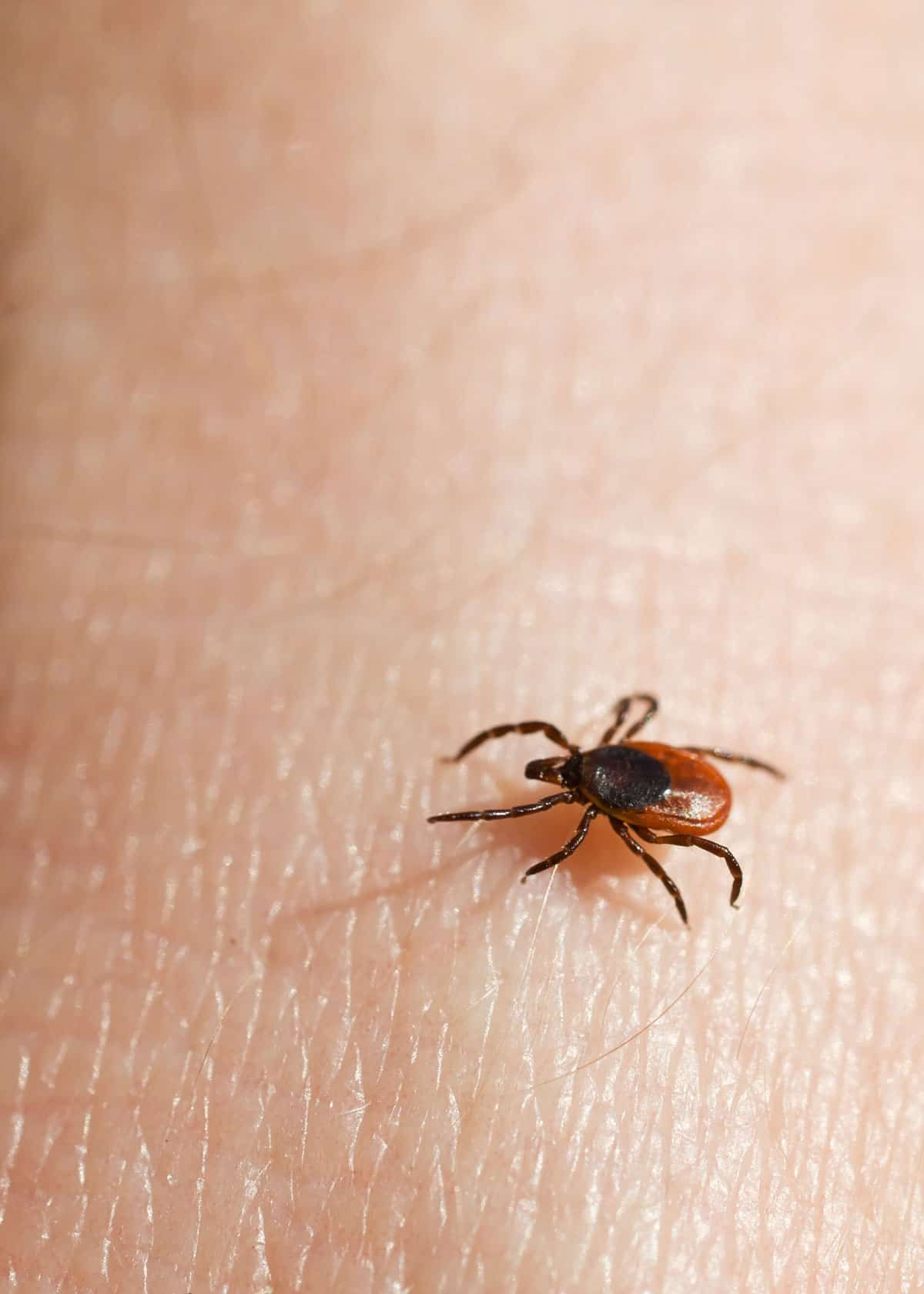 How To Get A Tick Head Out Of Your Body