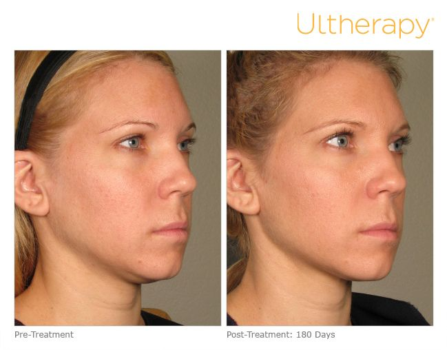 Ultherapy Is Often Described As A Facelift Without Surgery By Using Ultrasound To Have A Skin Tightening Effe Ultherapy Hair Therapy Skin Tightening Treatments