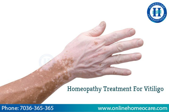 Vitiligo is a chronic skin disorder which is developed due to damaged pigment cells…