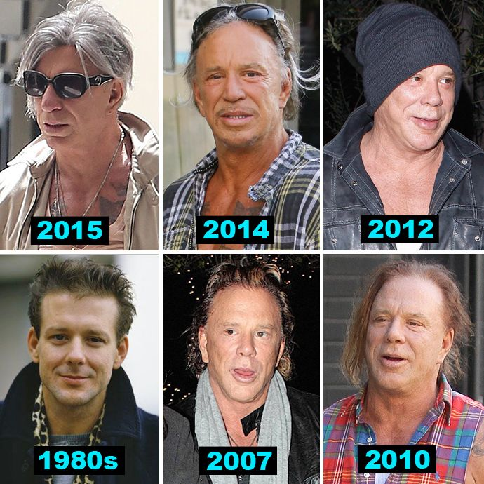 Mickey Rourke's New Face Is Freaking Us Out - X17 Online | Mickey rourke, Hayley atwell bikini, Celebrities then and now