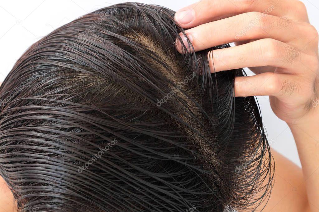 Young Man Serious Hair Loss Problem Health Care Shampoo Beauty  Stock Ph  Junger Mann ernsthafte Haarausfall Problem Gesundheitswesen Shampoo Schönheit  Lager Ph