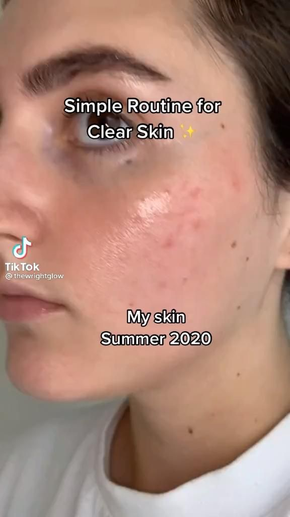 How to get clear skin fast!