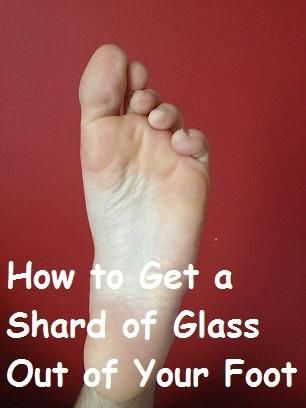 1f55c42ce157b0a81eab76af9ad1c4fb - How To Get Splinter Out Of Child S Foot