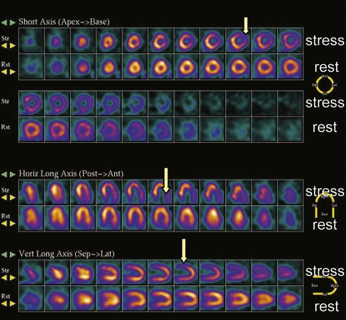 Stress Test Doctor: A Nuclear Stress Test Is A Imaging Method That Shows How