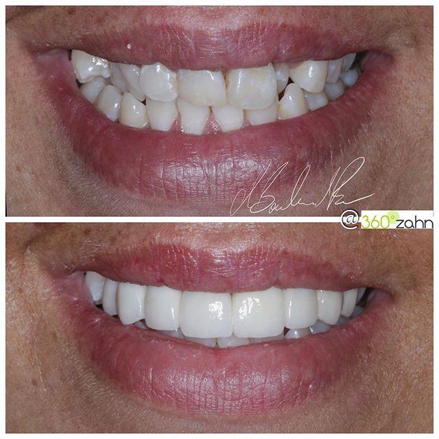 Pin auf 360°zahn   Zahnarzt