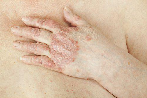 La psoriasis es una enfermedad cutánea que puede afectar tu autoestima. Descubre los 6 mejores remedios para controlar sus síntomas en forma natural.