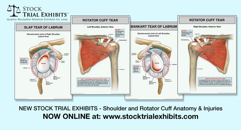 Rotator Cuff Full Thickness Tear of the Left Shoulder | Rotator cuff