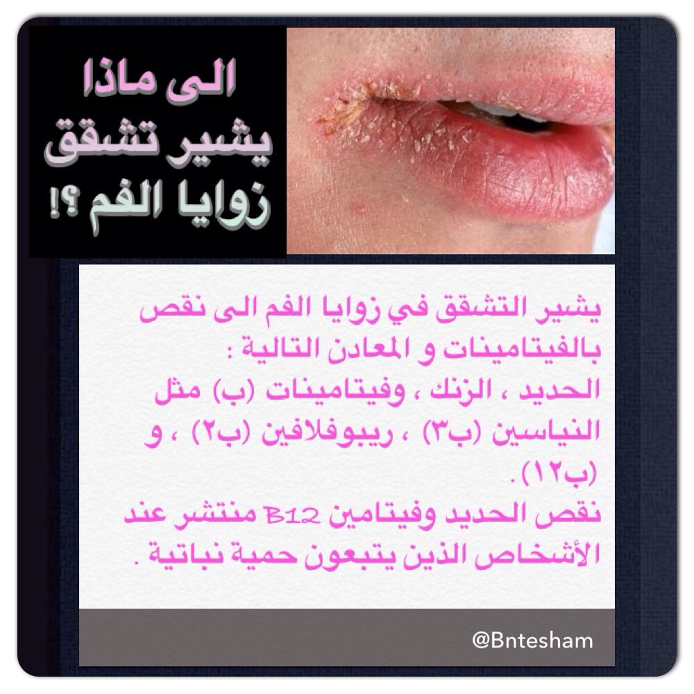 الى ماذا يشير تشقق زوايا الفم يشير التشقق في زوايا الفم الى نقص بالفيتامينات و المعادن التالية الحديد الزنك وفيتام Vitamins And Minerals Health Beauty