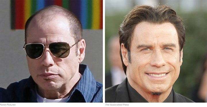 Famous Hollywood Men With Great Hair Pieces JOHN TRAVOLTA Hair Solutions  For Hollywood Celebrities Los Angeles Lace Front Wigs 3590e8e65