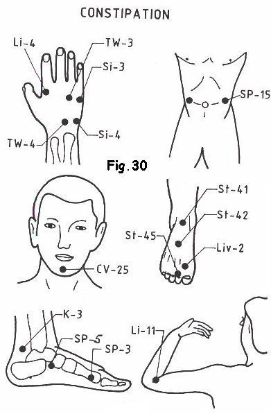 Acupressure points to stay fit … | Acupressure treatment ...