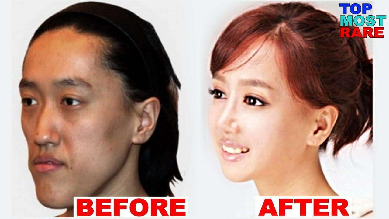 A great real life example of what plastic surgery can do plastic surgery before and