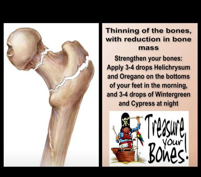 22+ Can you have osteoporosis in your feet information