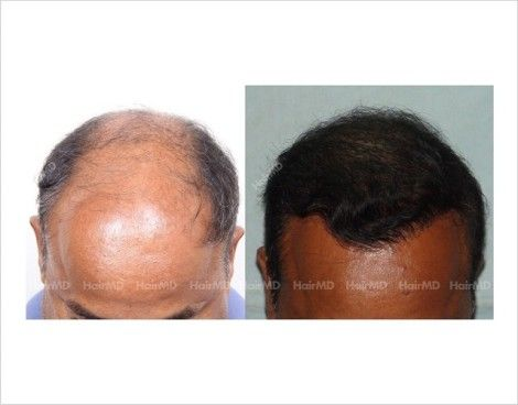 FUE Hair transplant Before & After Results   HairMD, Pune Gallery