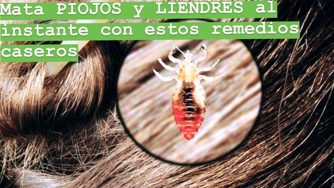 16 mejores imágenes de piojos en 2020   Piojos, Liendres