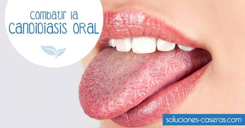 medicina para curar la candidiasis bucal