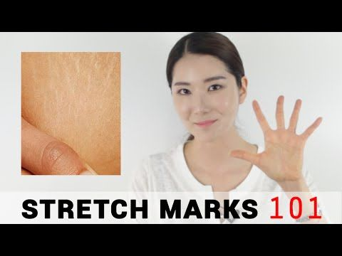 5 Essential Tips For Stretch Marks Wishtrend Youtube Stretch Marks Beauty Secrets Oils For Skin
