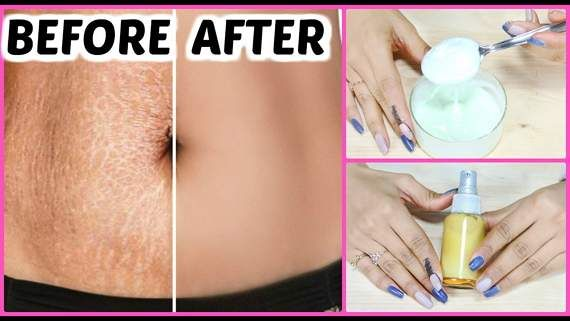 Homemade Stretch Marks Removal Cream Guaranteed Results In 6