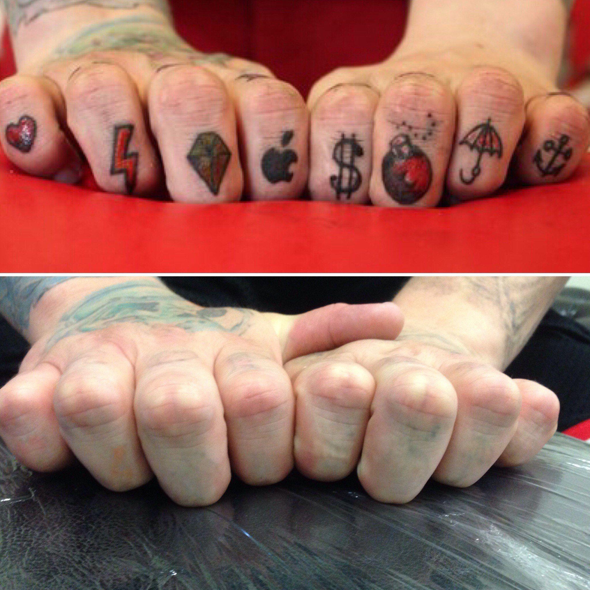 Pin by Tattoo Removal Treatment on Remove Tattoo Tat