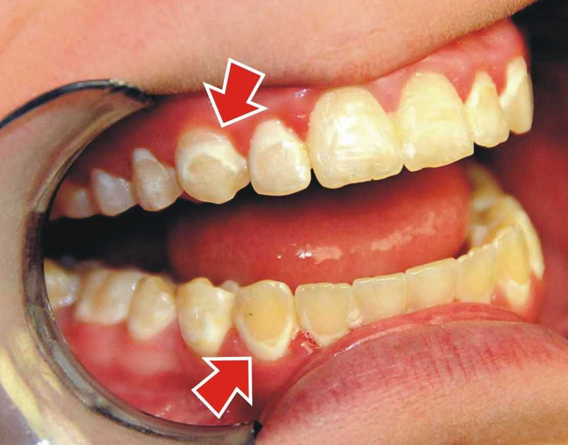 How Do You Treat White Spots After Braces? Teeth braces