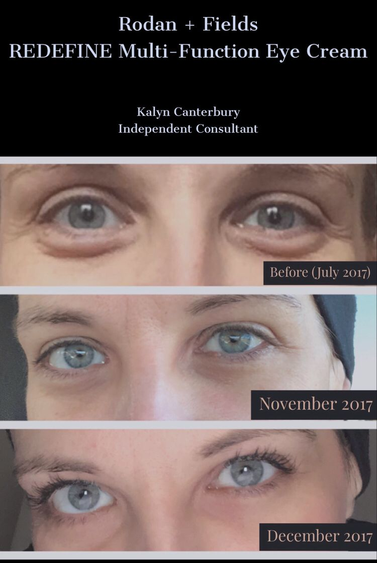 Rodan Fields Eye Cream And Active Hydration Bright Eyes Results