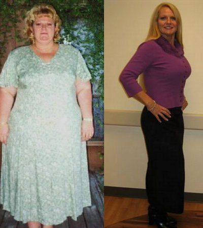 Real Weight Loss Success Stories Virginia S Amazing 60 Pound Weight