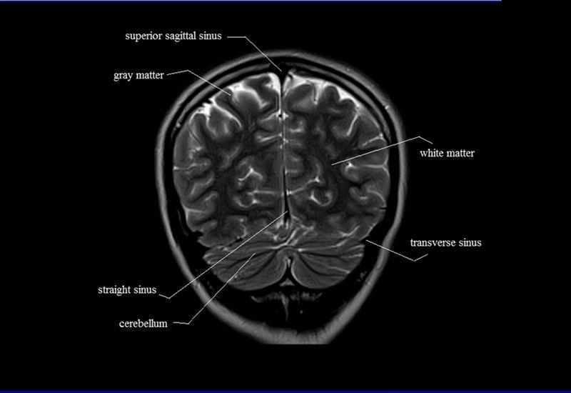 brain anatomy | MRI coronal brain anatomy | free MRI cross sectional ...