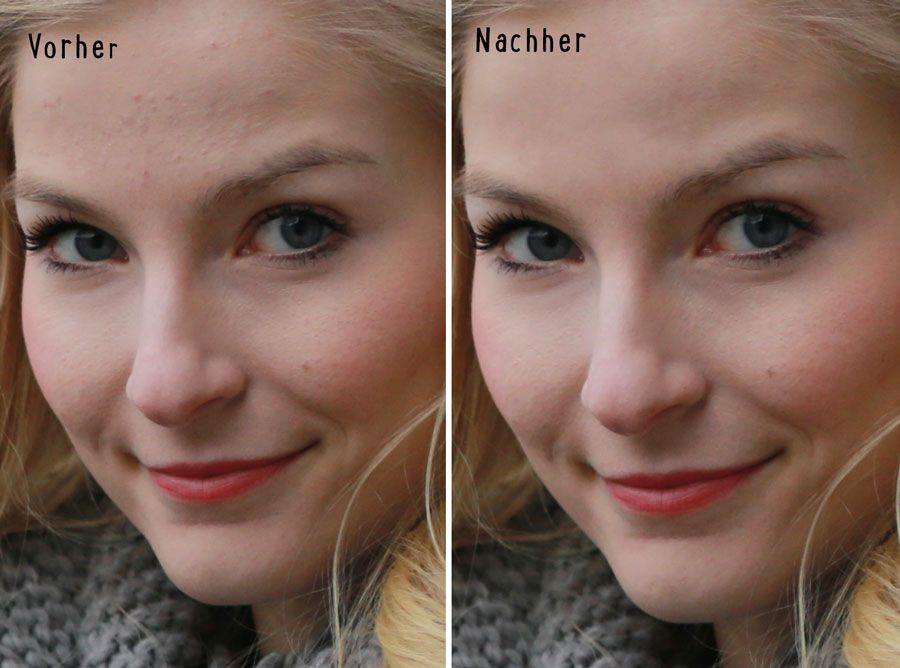 Wie werde ich Pickel in Photoshop Los? - …