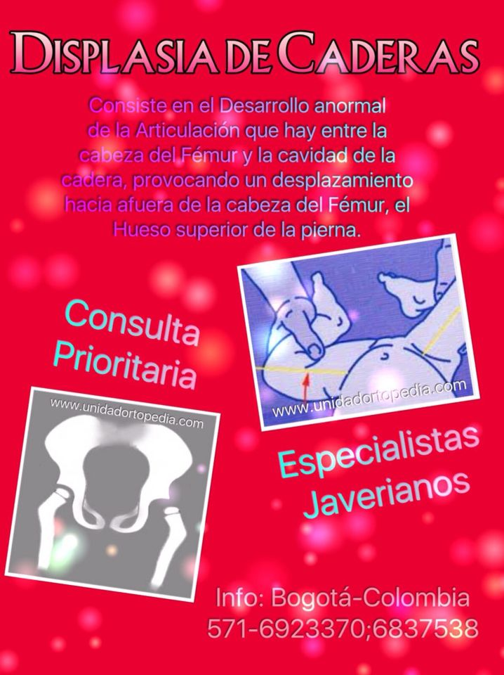 Consulta con médicos especialistas en Ortopedia Infantil en Bogota - Colombia contra la Displasia de la Cadera. Unidad Especializada en Ortopedia y Traumatologia en Bogota - Colombia PBX: 6923370 www.unidadortopedia.com