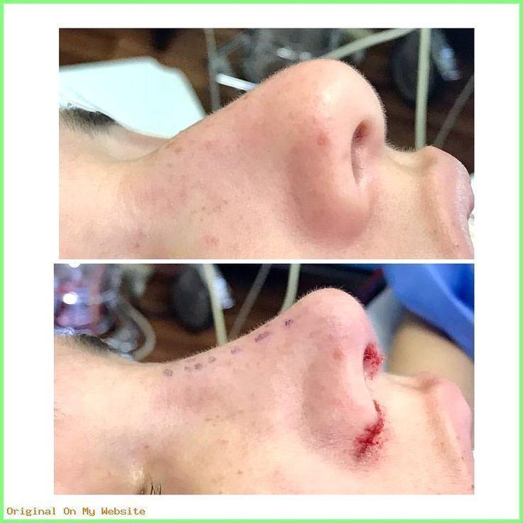 Before Rhinoplasty Minoplasty Bichectomy Bogotá Www