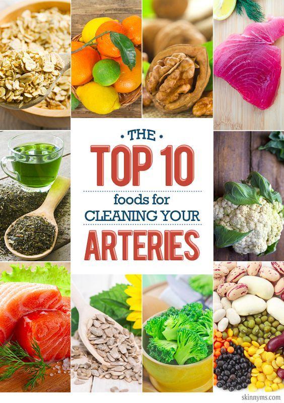 Die Top 10 Lebensmittel zur Reinigung Ihrer Arterien   – healthy grocery list