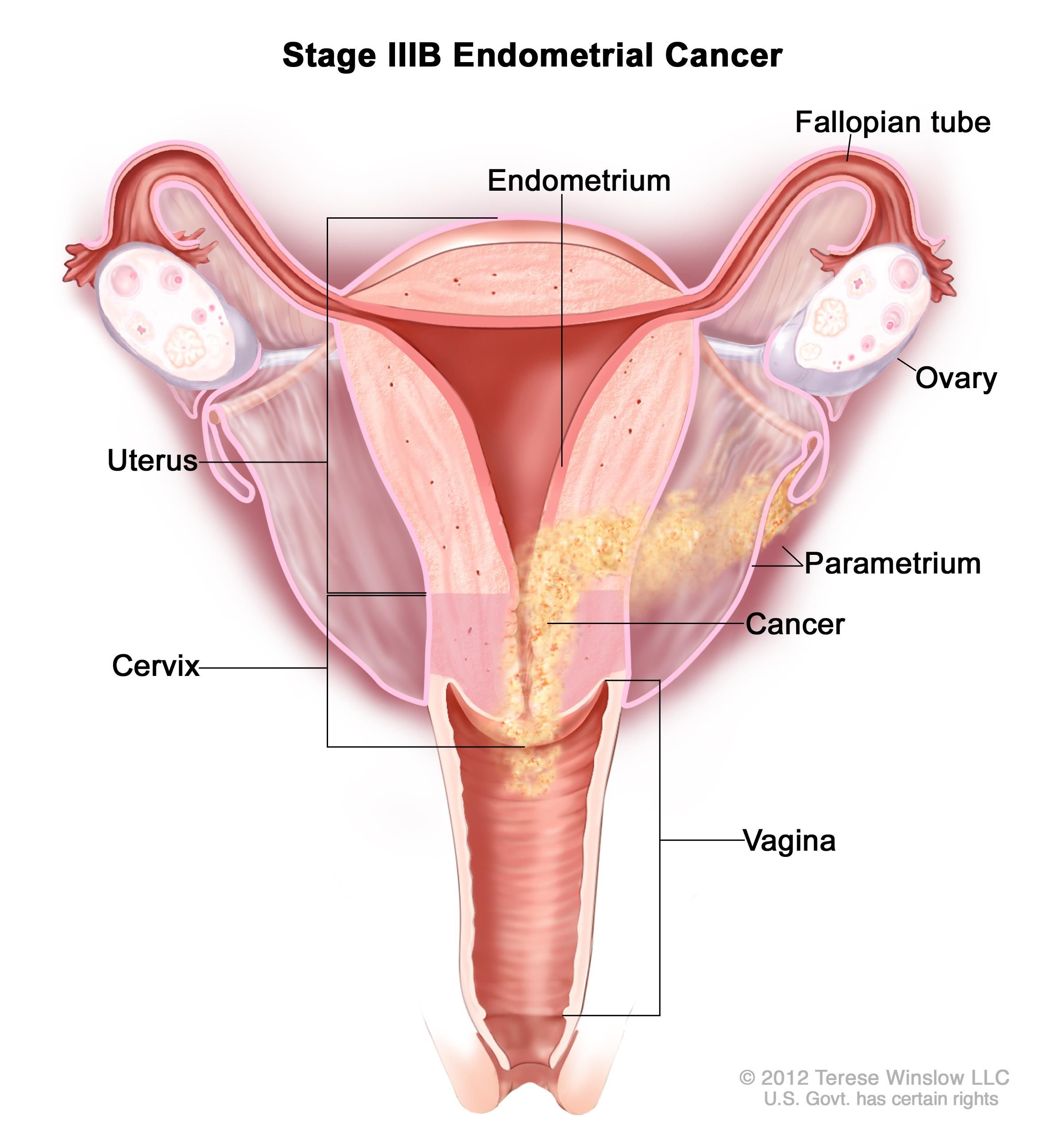 Kuvahaun tulos haulle parametrium anatomi pinterest searching uterine cancer is a type of cancer which affects uterus the female reproductive system it is also known as endometrial cancer pooptronica Choice Image